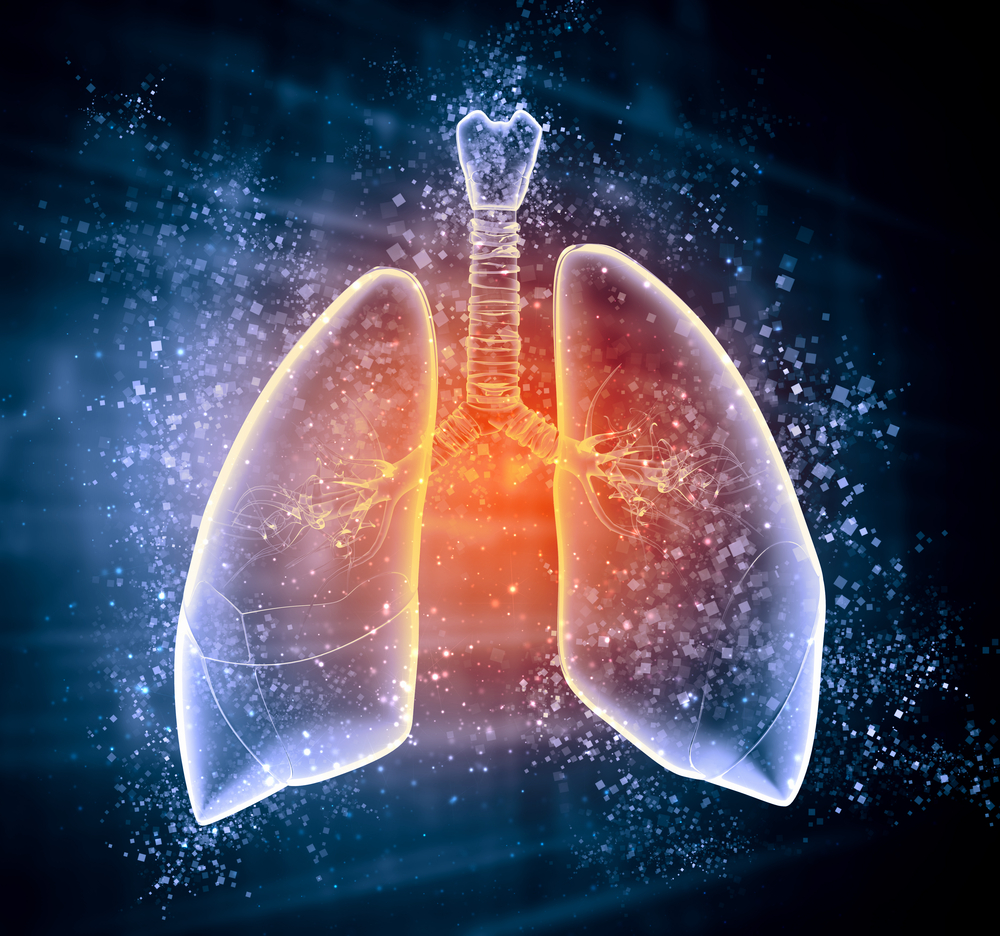 Course Image Acute Respiratory Distress Syndrome (ARDS) - COVID-19