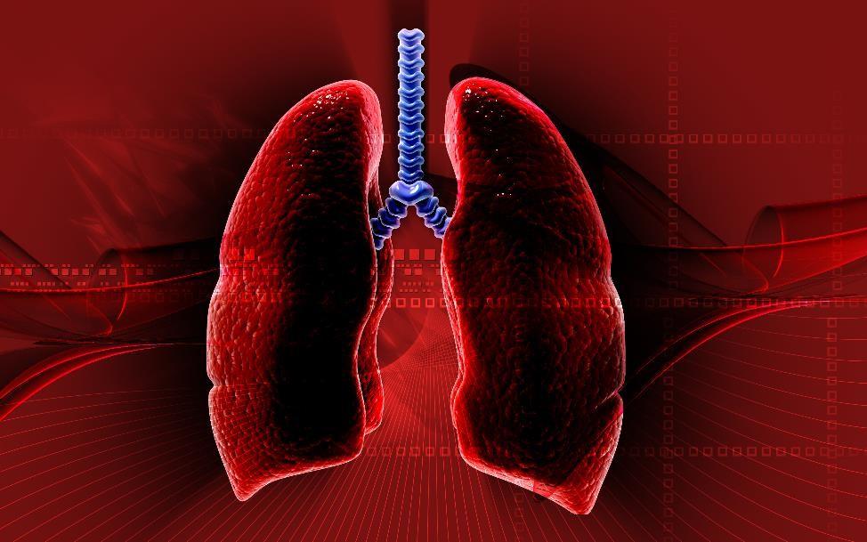 Course Image Acute respiratory failure ECLS - COVID-19
